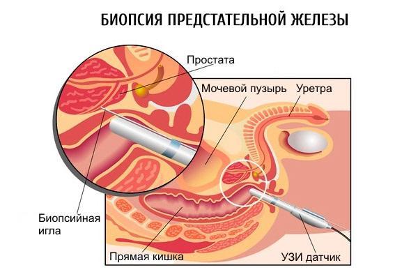 Процедура биопсии предстательной железы