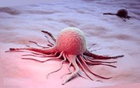 Раковые клетки человека
