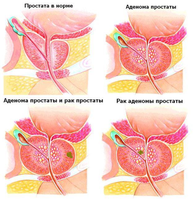 Какая разница между простатитом и аденомой простатит белгісі