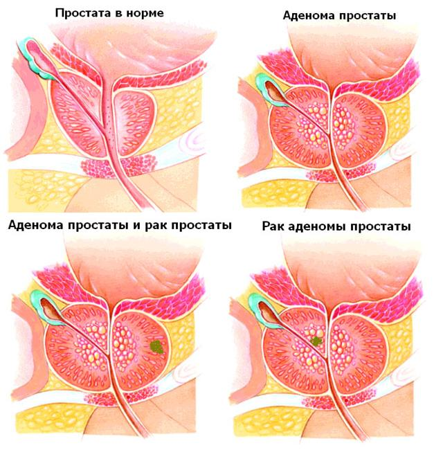 Различие между раком и аденомой простаты
