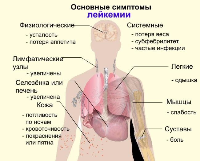 Симптомы рака крови лейкемии