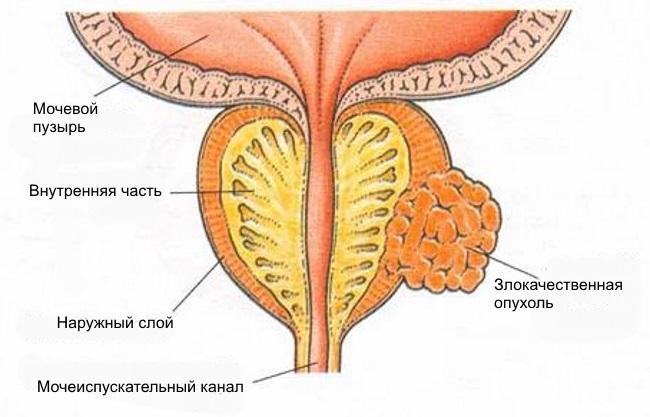 Лечение рака простаты гормонами