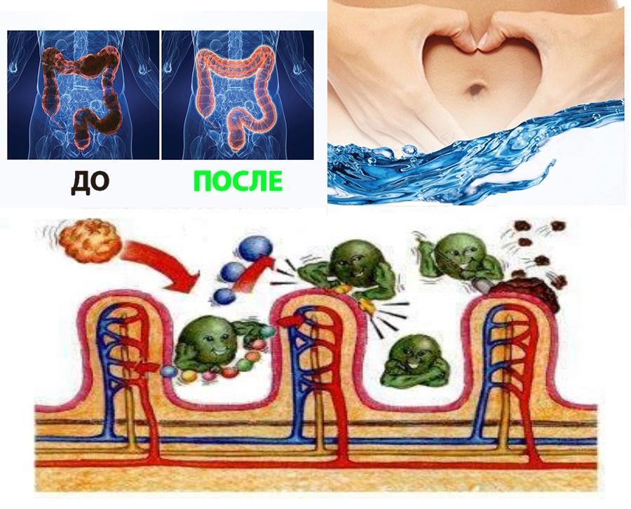 Очищение кишечника гидроколонотерапия